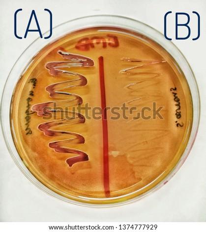 (A) E.aerogenes & (B) S.aureus Eosin Methylene Blue (EMB) Agar
