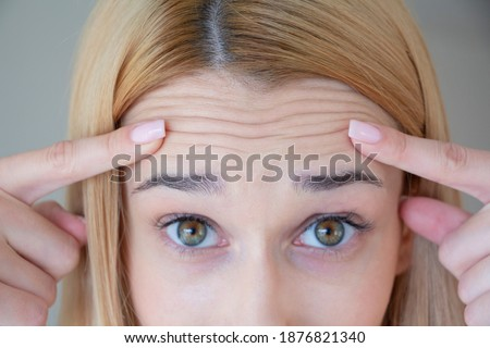 A woman has many facial wrinkles on her forehead. Stock photo ©