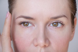 asymmetry of the face and drooping eyelid