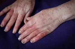 Close-up of woman's reddened hands and wounds from Raynaud's syndrome