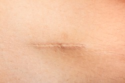 Closeup of Scars