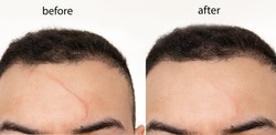 Comparison of  Before and after scar revision (treatment ) using laser , led  and creams on a man's forehead (face)