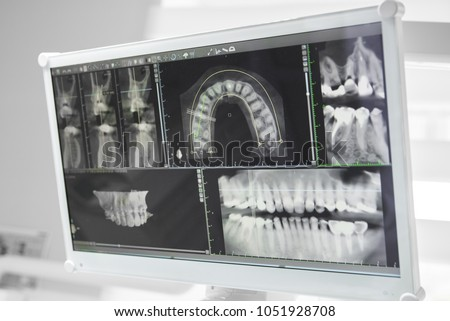 Computer diagnosis of the oral cavity in the dental office