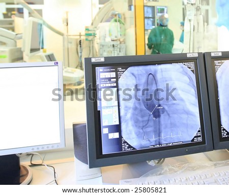 computer monitor during heart operation