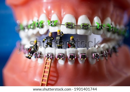Creative concept for Dental Center and Dentist. Small miniatures of workers install a dental appliance with colored clamps, work completed bright smile. dental treatment, healthy straight teeth. Photo stock ©