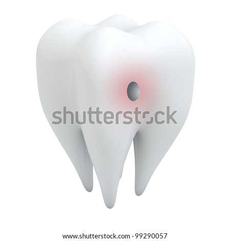 3D human tooth with hole isolated on white background.