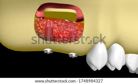 3D illustration of bone graft in the maxilla Stockfoto ©