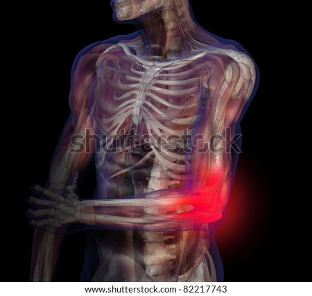 3D illustration of human male anatomy and skeleton. Elbow pain.