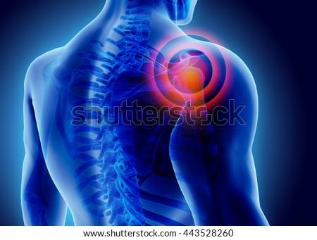 3D Illustration of shoulder painful, medical concept. ストックフォト ©