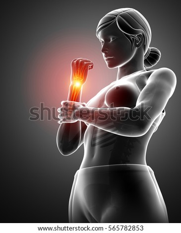 3d Illustration of Women Feeling the Wrist Pain #565782853