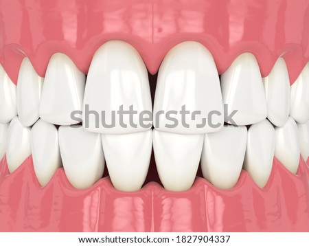Photo of  3d render of human jaw with black triangles between teeth