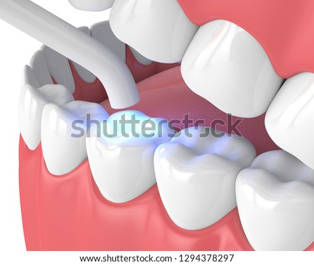 3d render of jaw with dental polymerization lamp and light cured inlay filling over white background