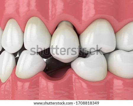 3d render of jaw with protruding tooth revealing root. Teeth sliding towards the area of missing tooth in order to fill the gap. Consequences of tooth loss.