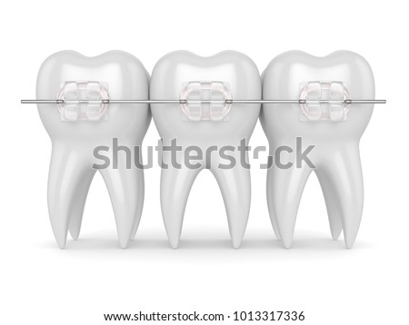 3d render of teeth with ceramic clear braces isolated over white background