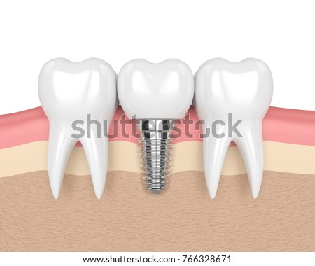 3d render of teeth with dental implant in gums over white background Foto d'archivio ©
