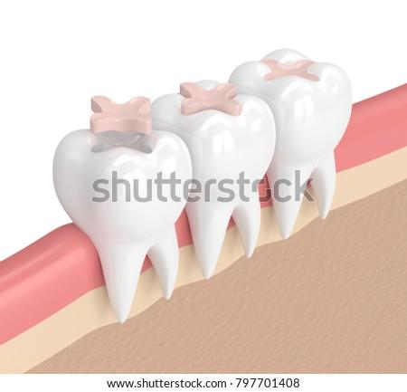 3d render of teeth with dental inlay filling in gums