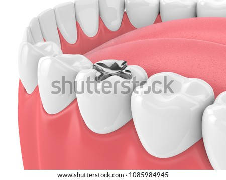 3d render of teeth with dental inlay filling in gums over white background