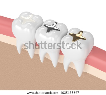 3d render of teeth with gold, amalgam and composite inlay dental filling in gums