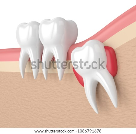 3d render of teeth with wisdom cyst. Concept of different types of wisdom teeth problems.