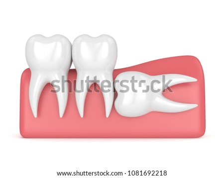 3d render of teeth with wisdom horizontal impaction over white background. Concept of different types of wisdom teeth impactions.