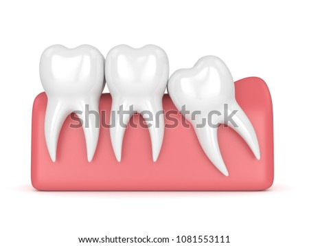 3d render of teeth with wisdom mesial impaction over white background. Concept of different types of wisdom teeth impactions.