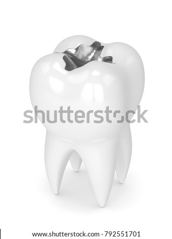3d render of tooth with dental amalgam filling over white background