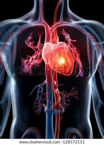 3d rendered illustration - heart attack