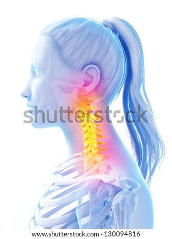3d rendered illustration of pain in the upper spine