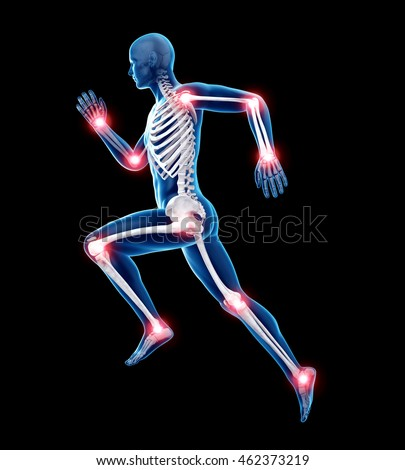 Shutterstock 3d rendered medically accurate illustration of painful joints
