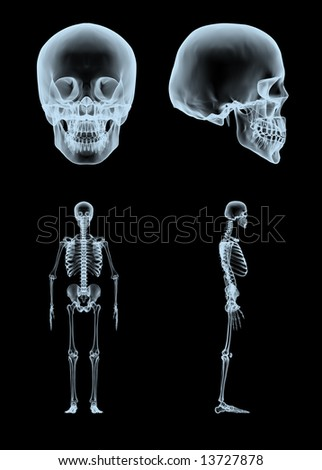 3d rendered x-ray skull and skeleton in two views