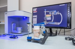 3D scanner and PC in the process of creating dentures