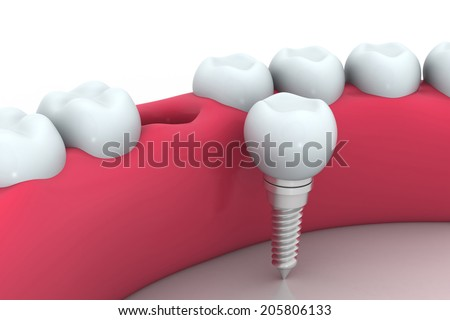 Dental implant human Tooth