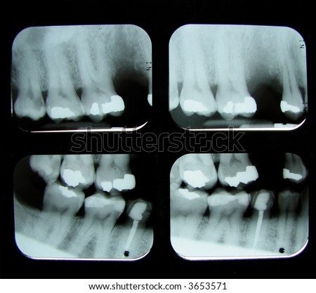 4 dental x-rays showing a missing tooth, root canal, and fillings in molars and bicuspids