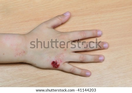 diathesis ( food allergy) on the hand of child
