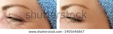 face woman wrinkles   after procedures