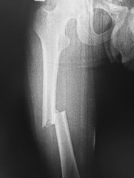 fracture left femur and blank area