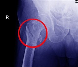 Hip fracture xray photo image.X-ray of hip joint fracture for elderly patient who falling in the step.