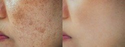 Image before and after dark spot melasma pigmentation skin on face asian woman. Problem skincare and health concept.