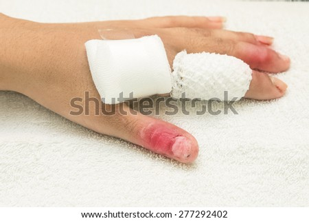 injured finger wrapped in a gauze bandage after surgery