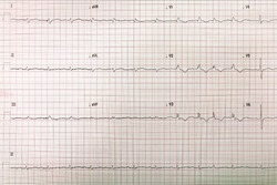 12-lead electrocardiogram and ekg and electrocardiograph
