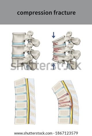 Medical 3D illustration for explanation compression fracture Photo stock ©