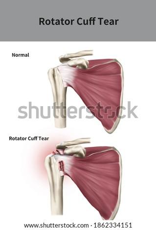 Medical 3D illustration for explanation Rotator Cuff Tear Сток-фото ©