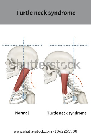 Medical illustration for explanation Turtle neck syndrome Photo stock ©
