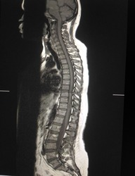 MRI. Whole spine intradural extramedullary mass at Lt lateral to spinal cord at T11 level and cause cord compression DDx. Schwannoma, neurofibroma. Diffuse bulging disc L5-S1 Multipe Tarlov cyst