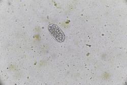 ์Nematode egg  under the microscope.