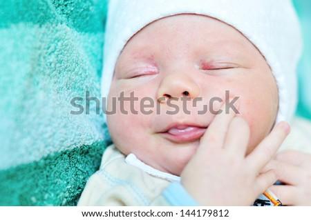 newborn baby  with baby rash,