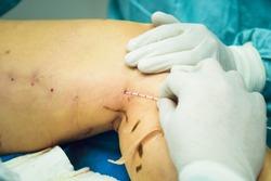 Phlebological procedure, surgery.