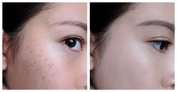 2 pictures compared to see Before and After undergoing treatment. In the left is the skin with problems of Seborrheic Keratosis. In the right is the skin after the whole process and shows glowing skin