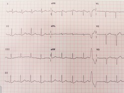 Premature ventricular contraction ECG effect in patients with palpitations, chest pain.