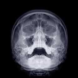 Skull x-ray image of Human skull  water's view for demonstrate facial bone isolated on Black Background.
